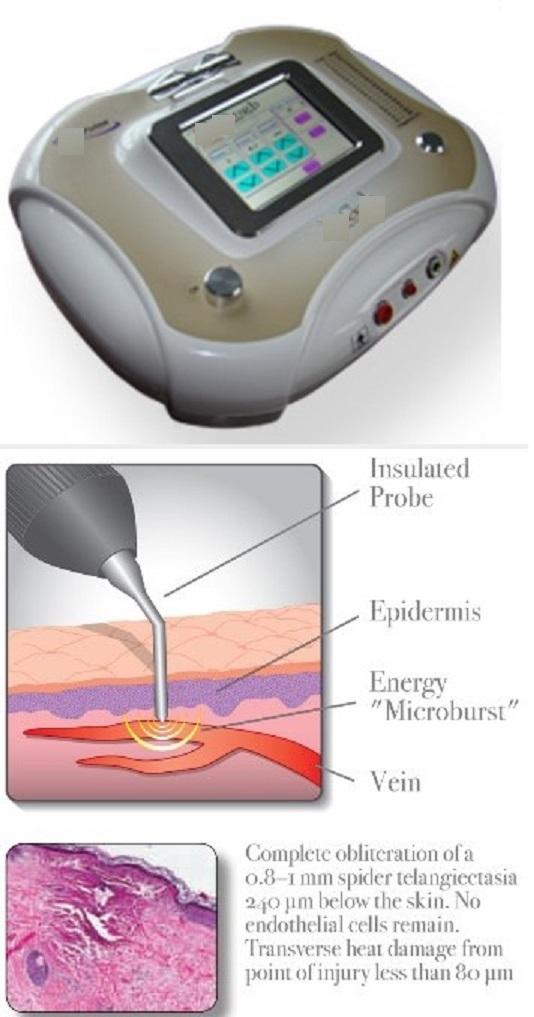 Máy điều trị suy tĩnh mạch chi dưới bằng công nghệ nhiệt phân