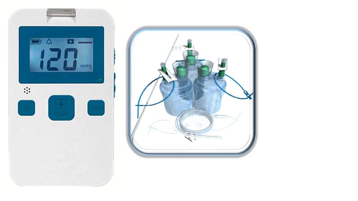 Máy hút dịch và điều trị vết thương hở bằng áp lực âm (loại di động đeo trên người)