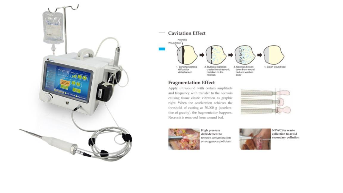 Hệ thống làm sạch vết thương bằng sóng siêu âm với 03 chức năng hoạt động: Khử mùi bằng sóng siêu âm + Khử mùi áp suất cao + Áp suất âm cho chất thải