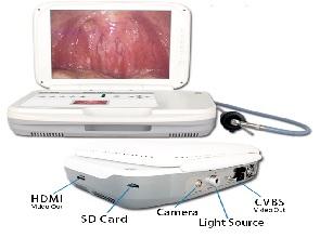 Nội soi chẩn đoán Tai Mũi Họng loại xách tay với màn hình LCD 15 inch