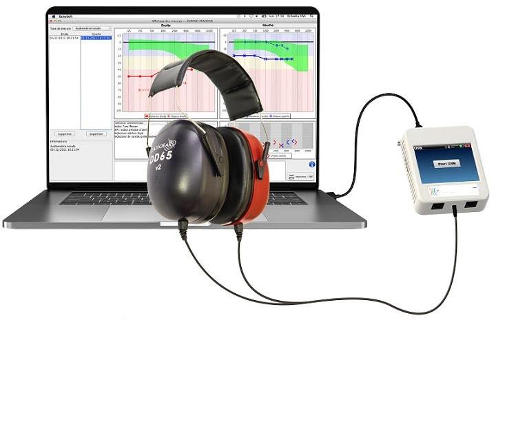 Máy đo nhĩ lượng đồ cho trẻ em